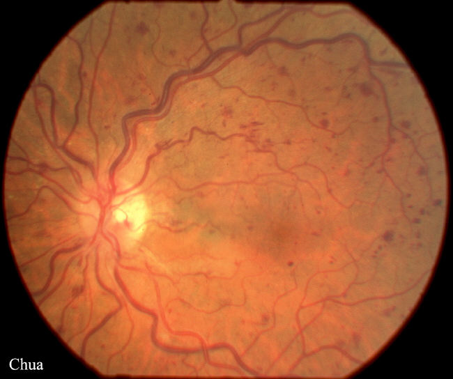 Atlas of posterior segment: central retinal vein occlusion